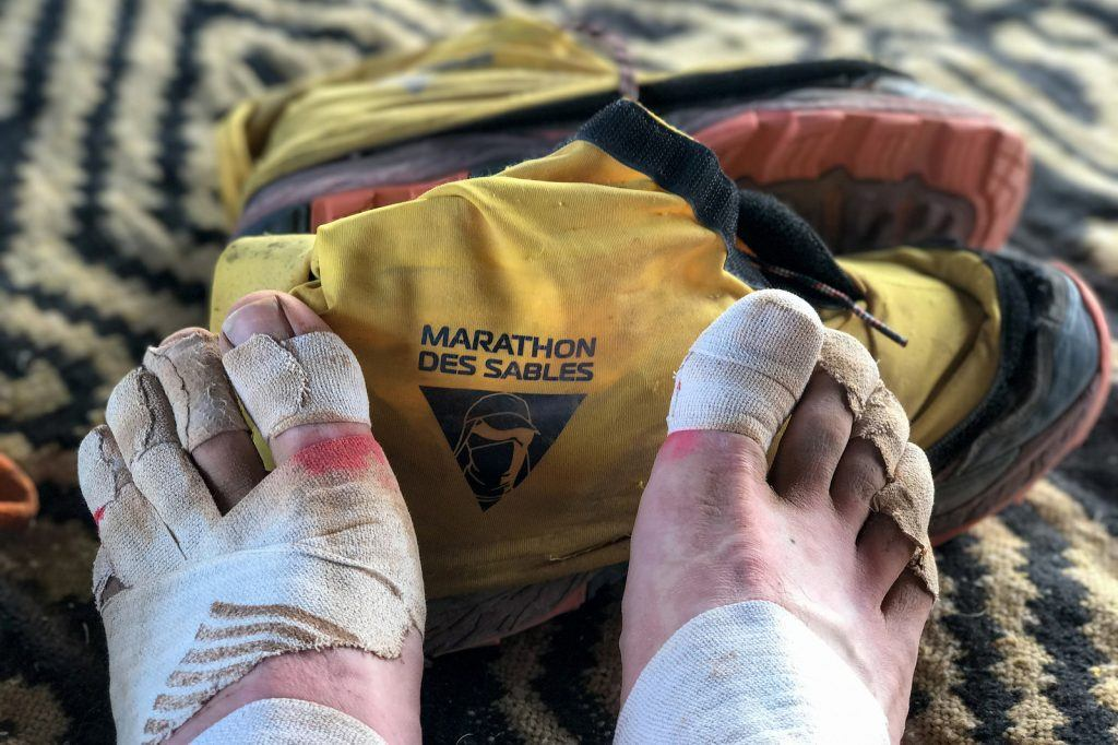 Marathon Des Sables feet repair